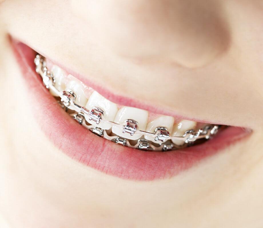 Korektivna zubna proteza