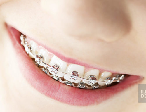 Orthodontic appliances and fixed braces